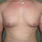 before male breast reduction front view case 979