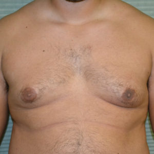 before male breast reduction front view case 991