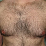 before male breast reduction left profile case 999