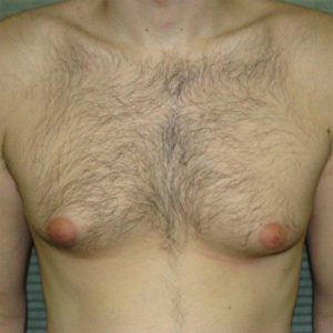 before male breast reduction front view case 1004