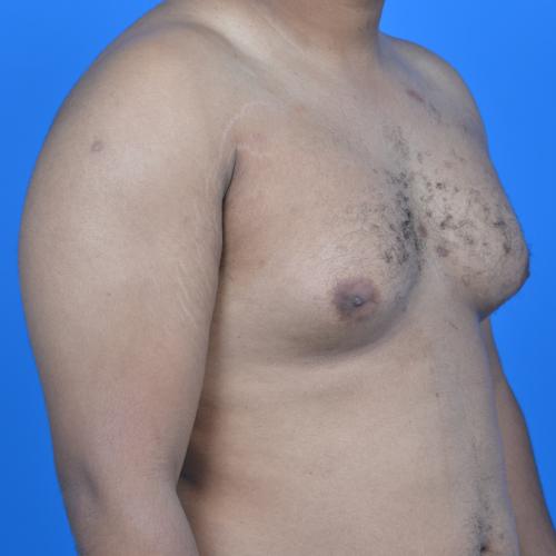 gynecomastia before surgery right oblique view case 951