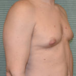 gynecomastia before surgery right oblique view case 958