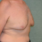 before male breast reduction right oblique case 972