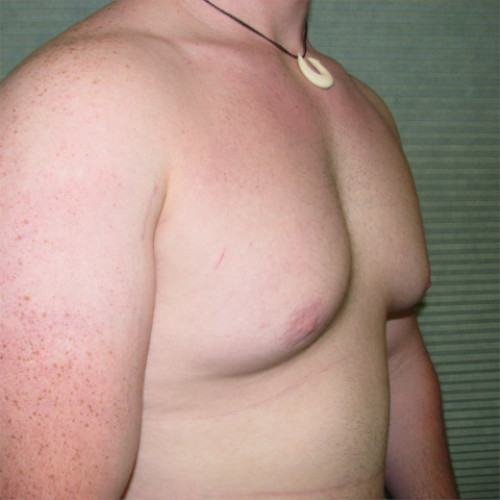 before male breast reduction right oblique case 979