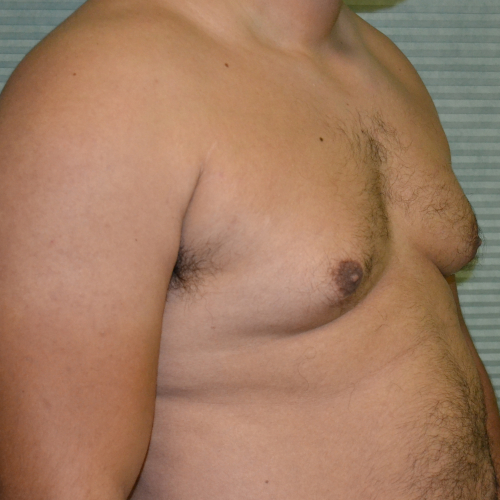 before male breast reduction oblique view case 991