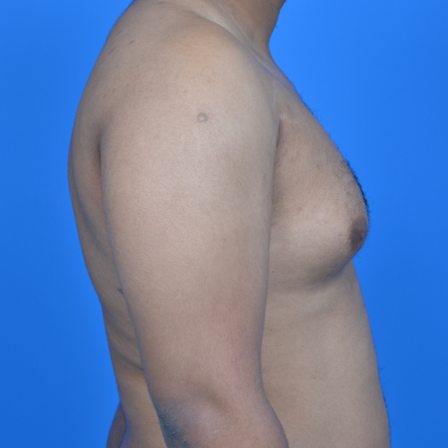 gynecomastia before surgery right profile view case 951