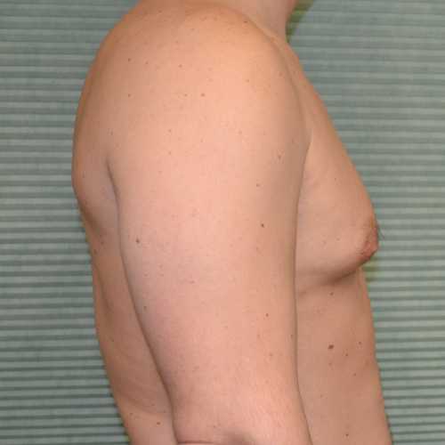 gynecomastia before surgery right profile view case 958