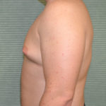 gynecomastia before surgery left profile view case 965