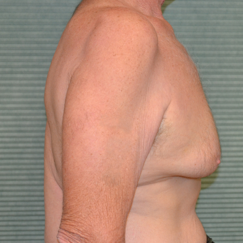 before gynecomastia surgery right profile view case 972
