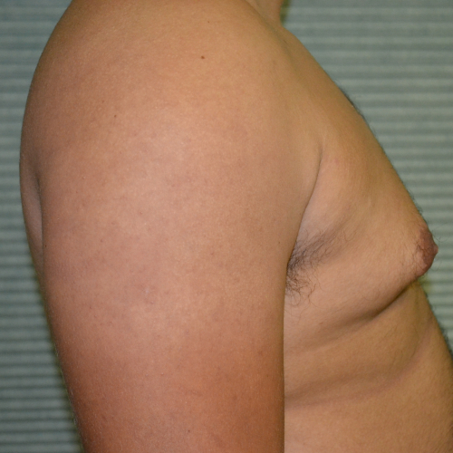 before male breast reduction side view case 991