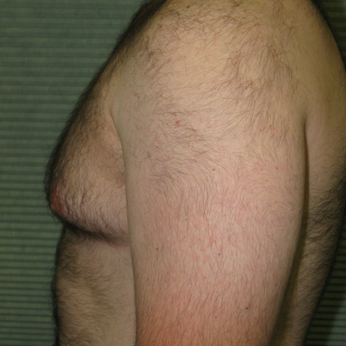 before male breast reduction left profile view case 999