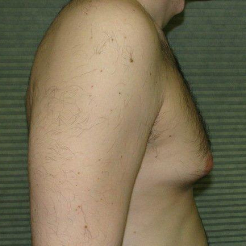 before male breast reduction right profile view case 1004