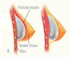 breast tissue and pectoral muscle diagram