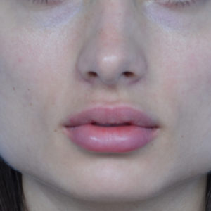after Juvederm treatment case 1011