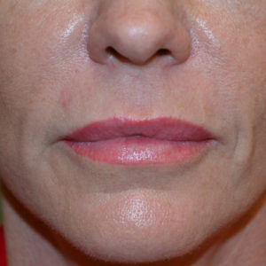 after Juvederm Ultra case 1014