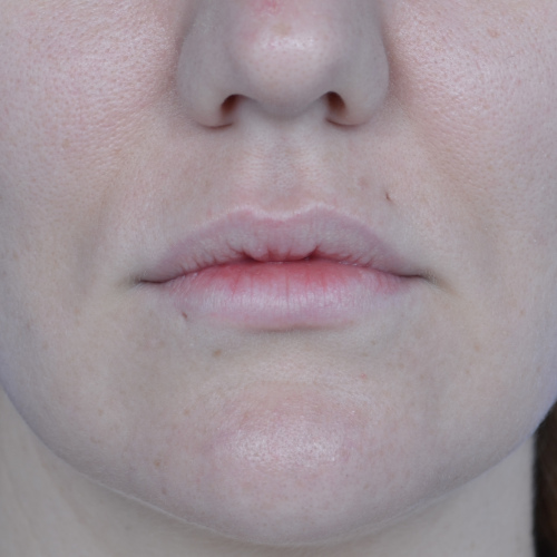 after lip augmentation case 1023