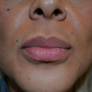 after lip augmentation case 1026