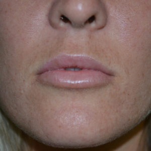 closeup after lip augmentation case 1029