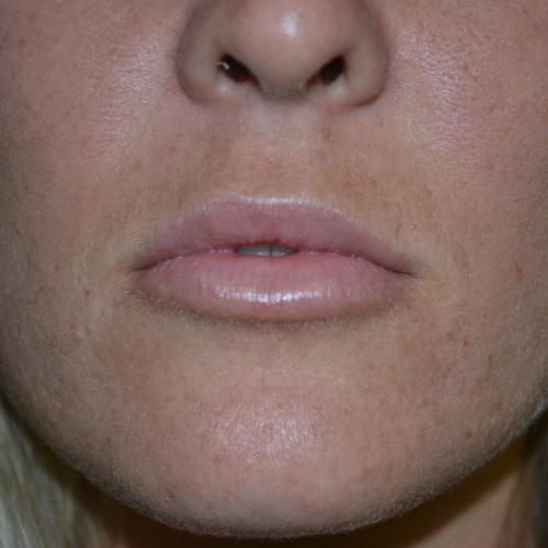 closeup after lip augmentation case 1029
