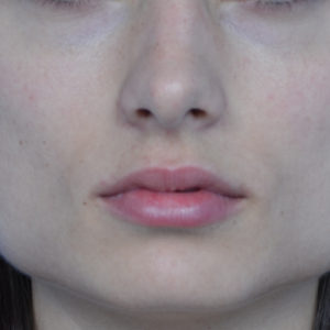 before Juvederm treatment case 1011