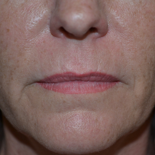 lips before Juvederm ultra case 1014