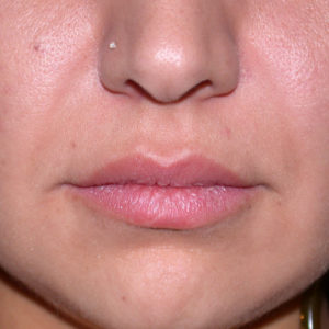before Juvederm case 1020