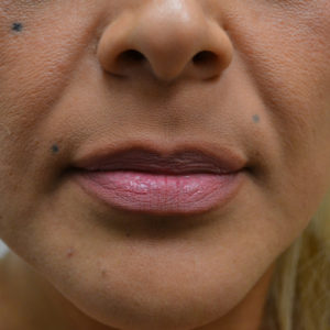 before lip augmentation case 1026