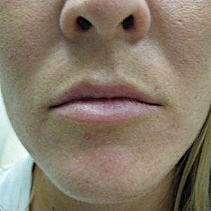 closeup before lip augmentation case 1029