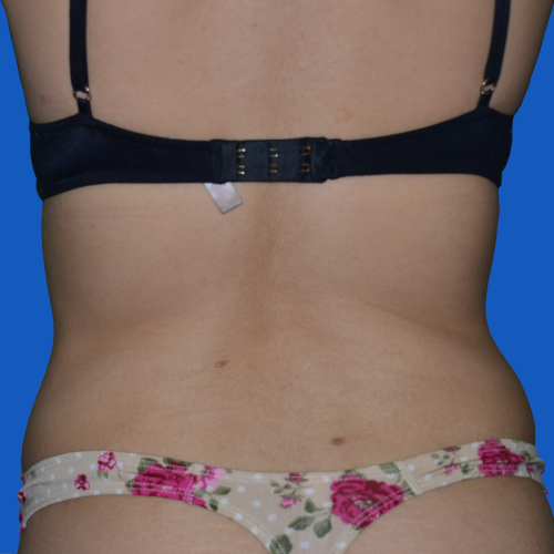 after liposuction to female patient's flanks, case 1679