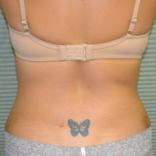 back view of patient's flanks after lipo case 1228