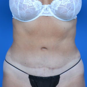 after liposuction front case 1657