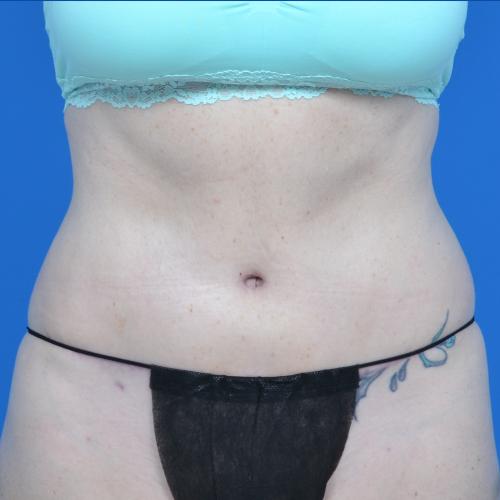 after liposuction on female patient's abdomen, case 1669