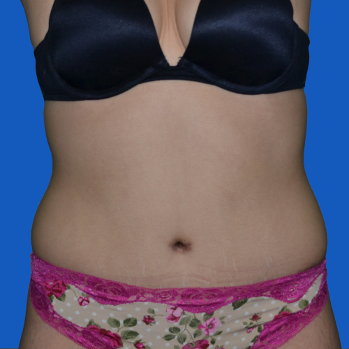 after liposuction to abdomen front view, case 1679