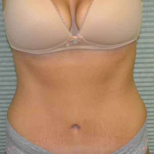 front view of patient's midsection after liposuction