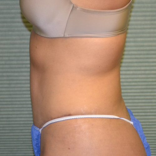 left side view of patient after liposuction case 1648
