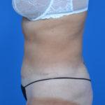 after liposuction left side case 1657