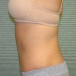 after liposuction left side 1228