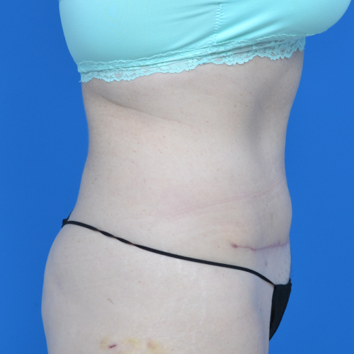 right side view after liposuction on female patient's abdomen, case 1669