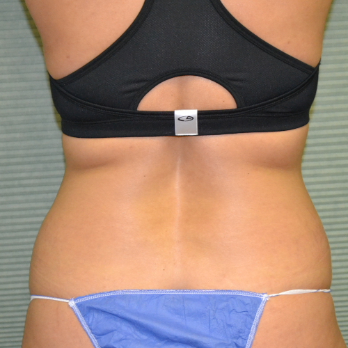 before liposuction on patient's flanks case 1648
