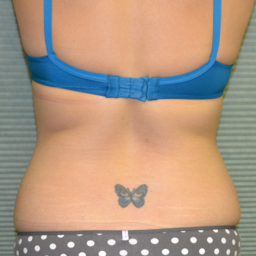 back view of patient's flanks before lipo case 1228