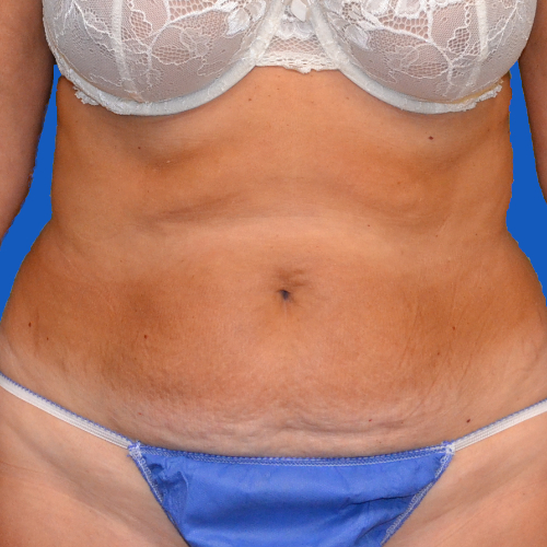 before liposuction front, case 1657