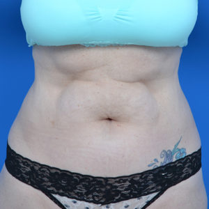 before liposuction front view case 1669