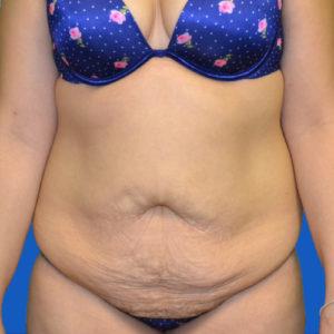 female patient before lipo to abdomen case 1679