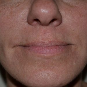 nasolabial area closeup after fillers case 948
