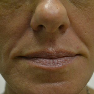 nasolabial closeup before fillers case 948