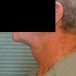 neck lift case 1044 after procedure left profile