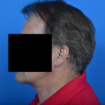 after necklift left profile view case 1032