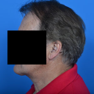 after necklift left profile view case 1032