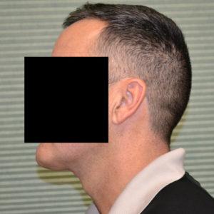 male patient case 1049 after necklift left profile
