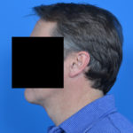 left profile view of male patient after necklift case 1037
